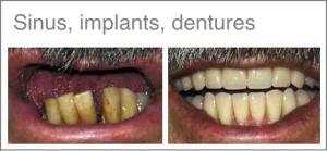 Bihuleløft - Tannbehandling i utlandet