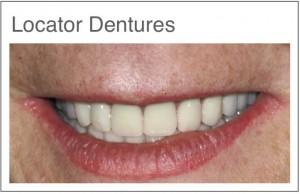 Tannproteser - Tannbehandling i utlandet