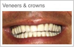 Tannfasetter