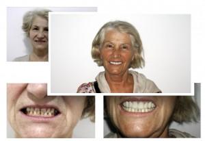 Kosmetisk tannpleie - Tannbehandling i utlandet
