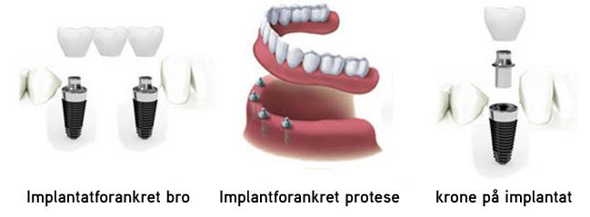 Tannimplantat pris - Tannbehandling i utlandet