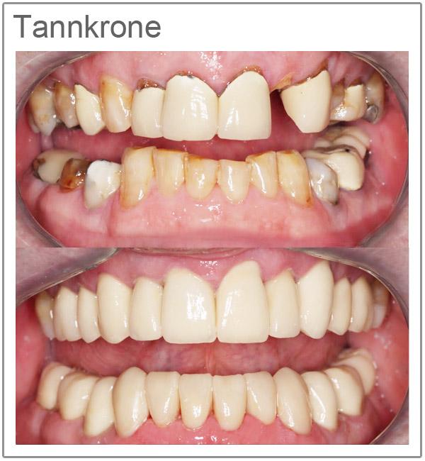 Tannkroner priser - Tannbehandling i utlandet